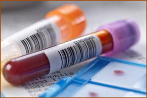 Тестирование на антитела гепатита