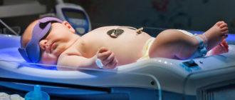 Лечение желтухи новорожденных методом фототерапии