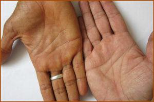 Гепатит А: причины