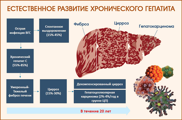 Естественное течение гепатита