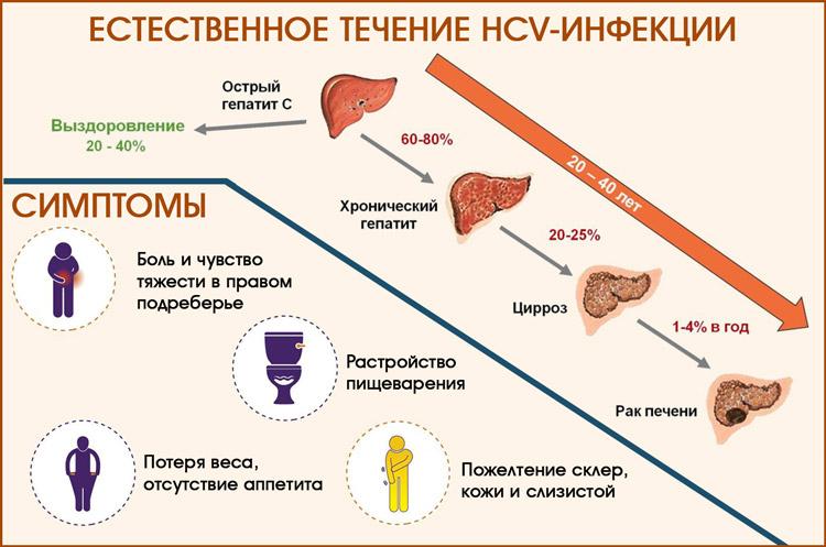 Гепатит с: симптоматика