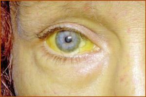 Признак желтухи: желтые склеры