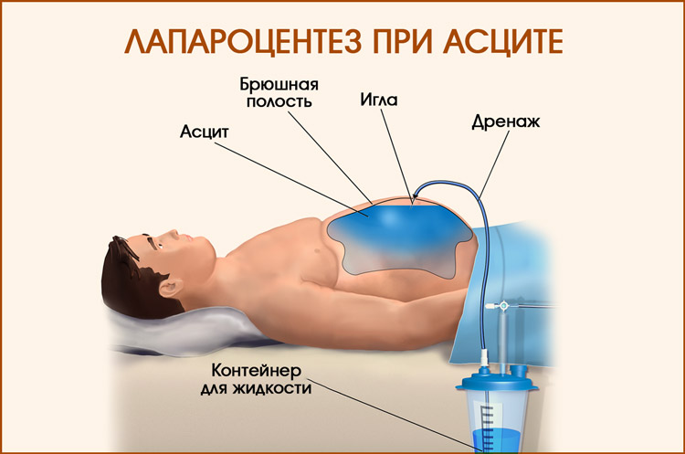 Лечение асцита