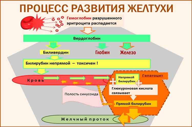 Желтухи: процесс развития болезни