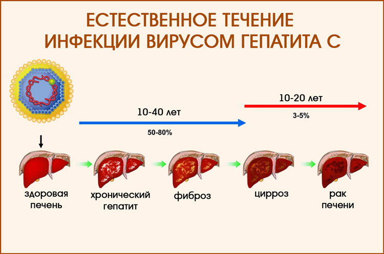 Естественное течение гепатита С