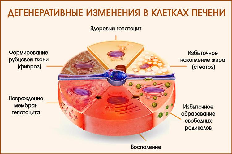 Изменения в гепатоцитах