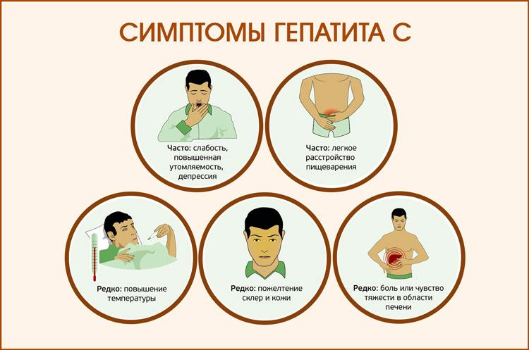 Гепатит С: симптомы