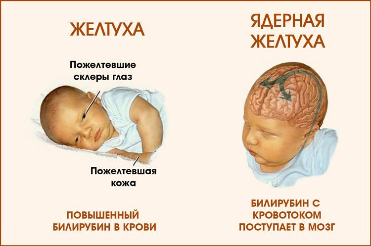 Ядерная желтуха у младенца